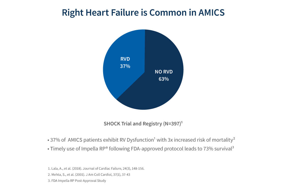 Pie chart showing how common right heart failure is in AMI cardiogenic shock