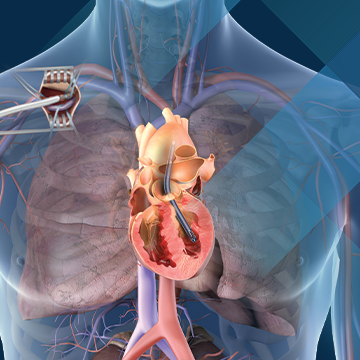 Illustration of a heart with an Impella heart pump in the left ventricle