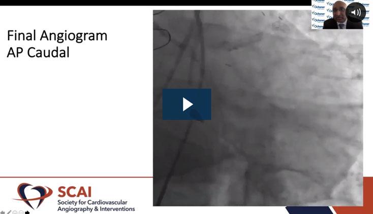 Video describing Protected PCI for Superior Long-Term Outcomes from SCAI 2021