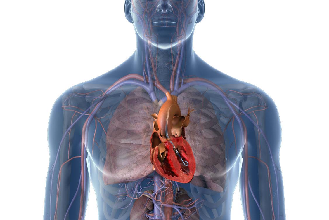 Gefäßsystem im Oberkörper mit Fokus auf das Herz